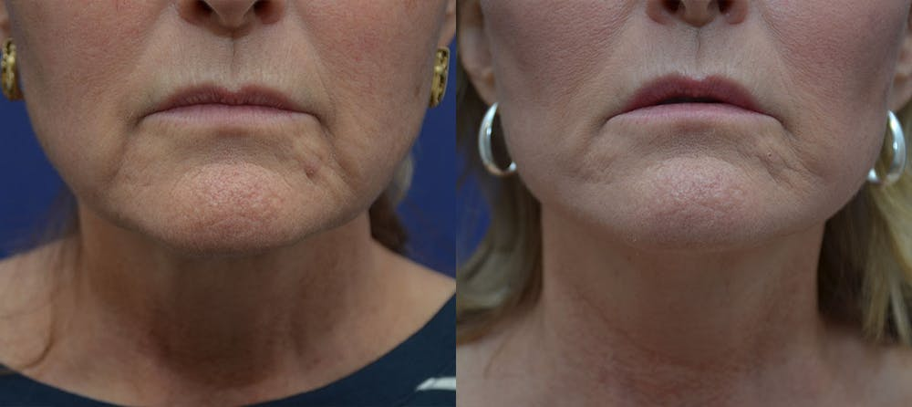 Facelift Gallery - Patient 42521083 - Image 1