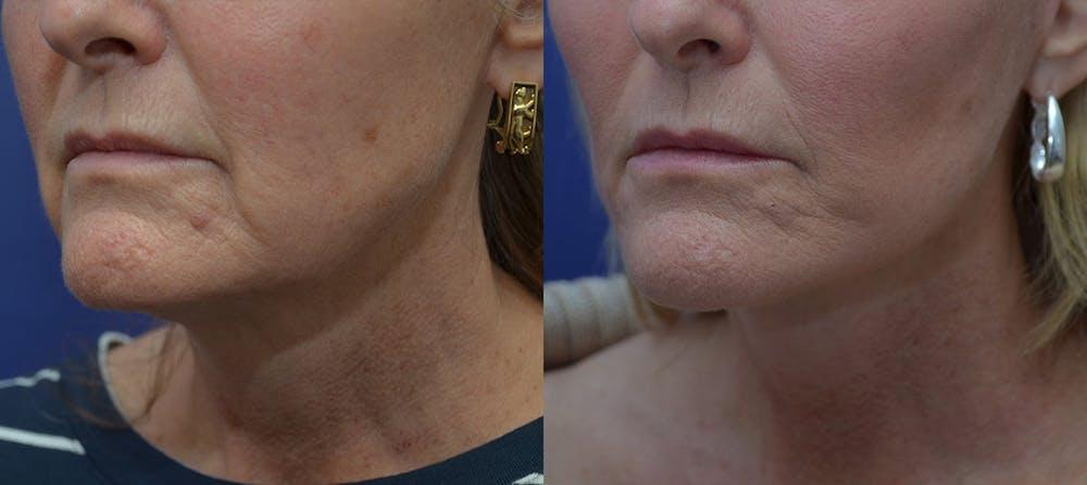 Facelift Gallery - Patient 42521083 - Image 2
