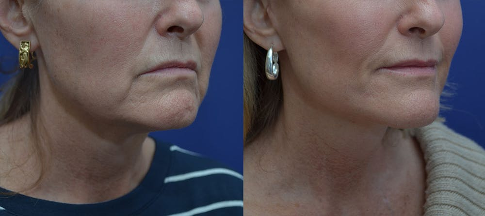 Facelift Gallery - Patient 42521083 - Image 4