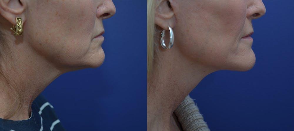 Facelift Gallery - Patient 42521083 - Image 5