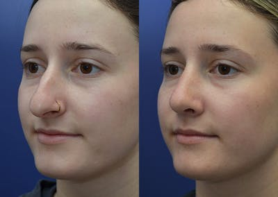 Rhinoplasty (Nose Reshaping) Gallery - Patient 30353998 - Image 2