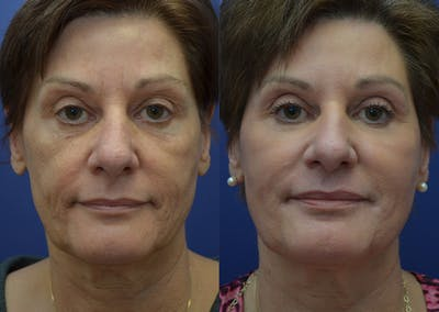 Non-Surgical Soft Tissue Fillers Gallery - Patient 44238065 - Image 1
