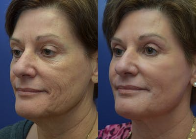 Non-Surgical Soft Tissue Fillers Gallery - Patient 44238065 - Image 2