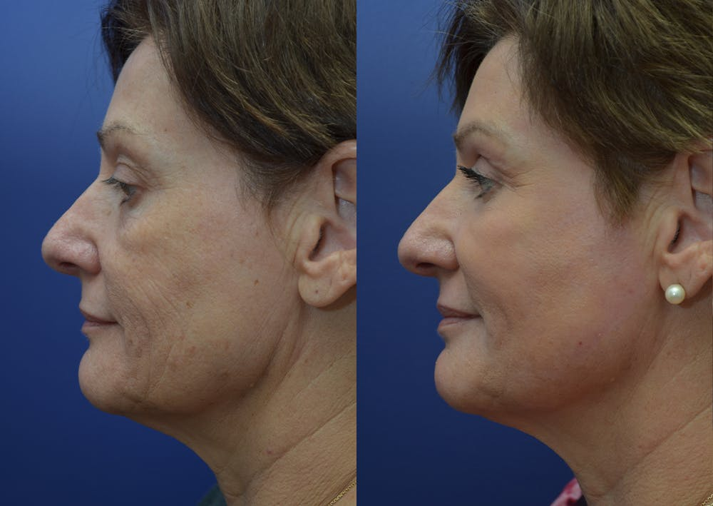 Non-Surgical Soft Tissue Fillers Gallery - Patient 44238065 - Image 3