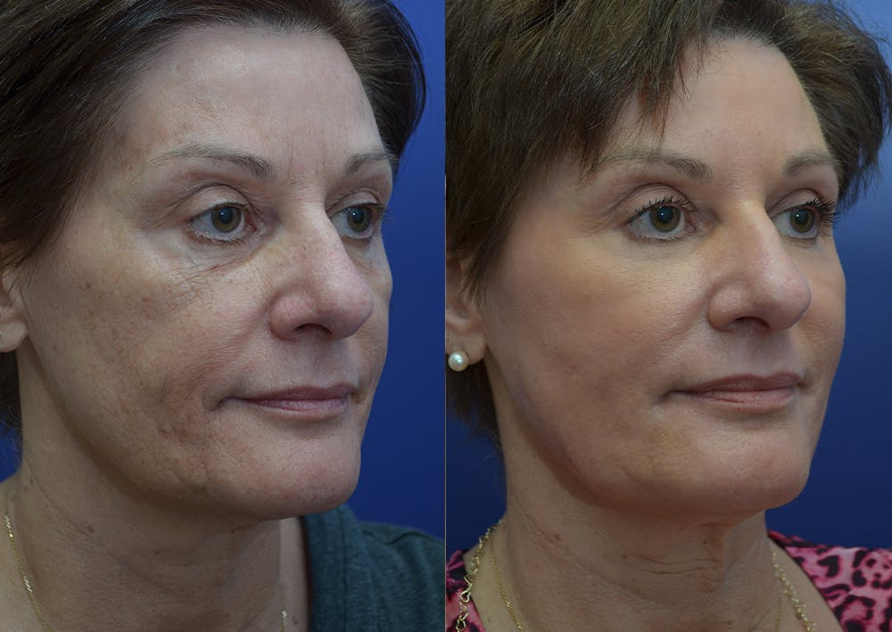 Non-Surgical Soft Tissue Fillers Gallery - Patient 44238065 - Image 4