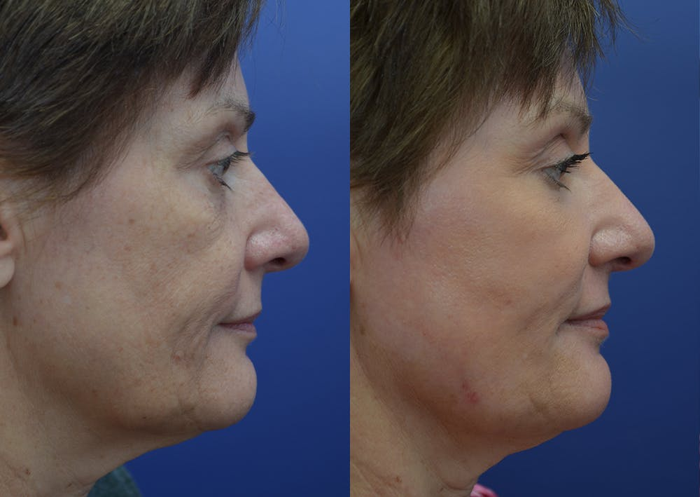 Non-Surgical Soft Tissue Fillers Gallery - Patient 44238065 - Image 5