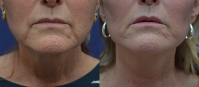 Facelift Gallery - Patient 44237761 - Image 1