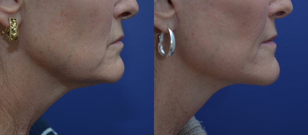 Facelift Gallery - Patient 44237761 - Image 4