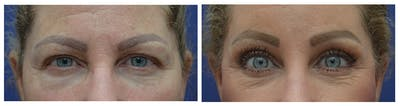 Eyelid Surgery Gallery - Patient 49141910 - Image 1