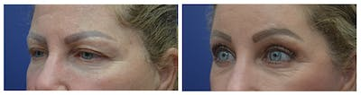 Eyelid Surgery Gallery - Patient 49141910 - Image 2