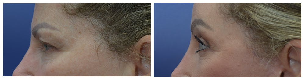 Eyelid Surgery Gallery - Patient 49141910 - Image 3