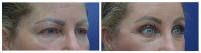 Eyelid Surgery Gallery - Patient 49141910 - Image 4