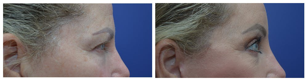 Eyelid Surgery Gallery - Patient 49141910 - Image 5