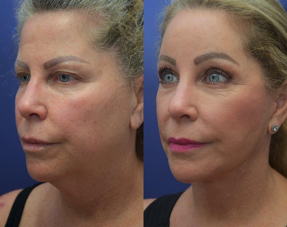 Facelift Gallery - Patient 50993077 - Image 1