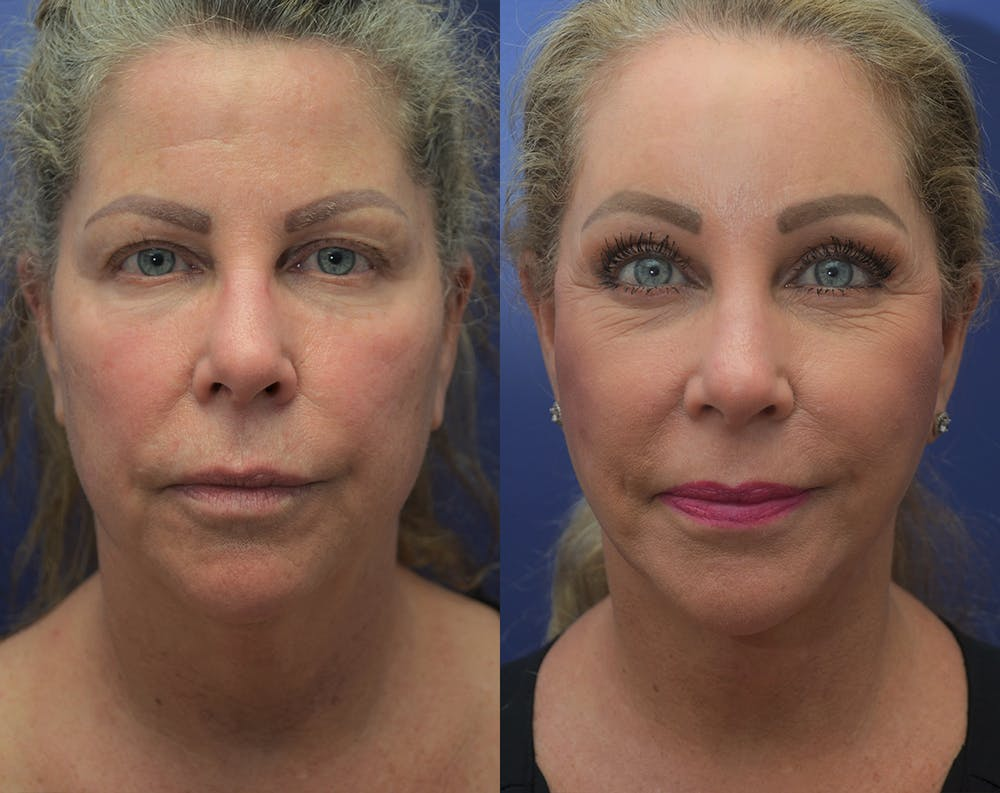 Facelift Gallery - Patient 50993077 - Image 3