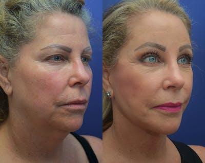 Facelift Gallery - Patient 50993077 - Image 2