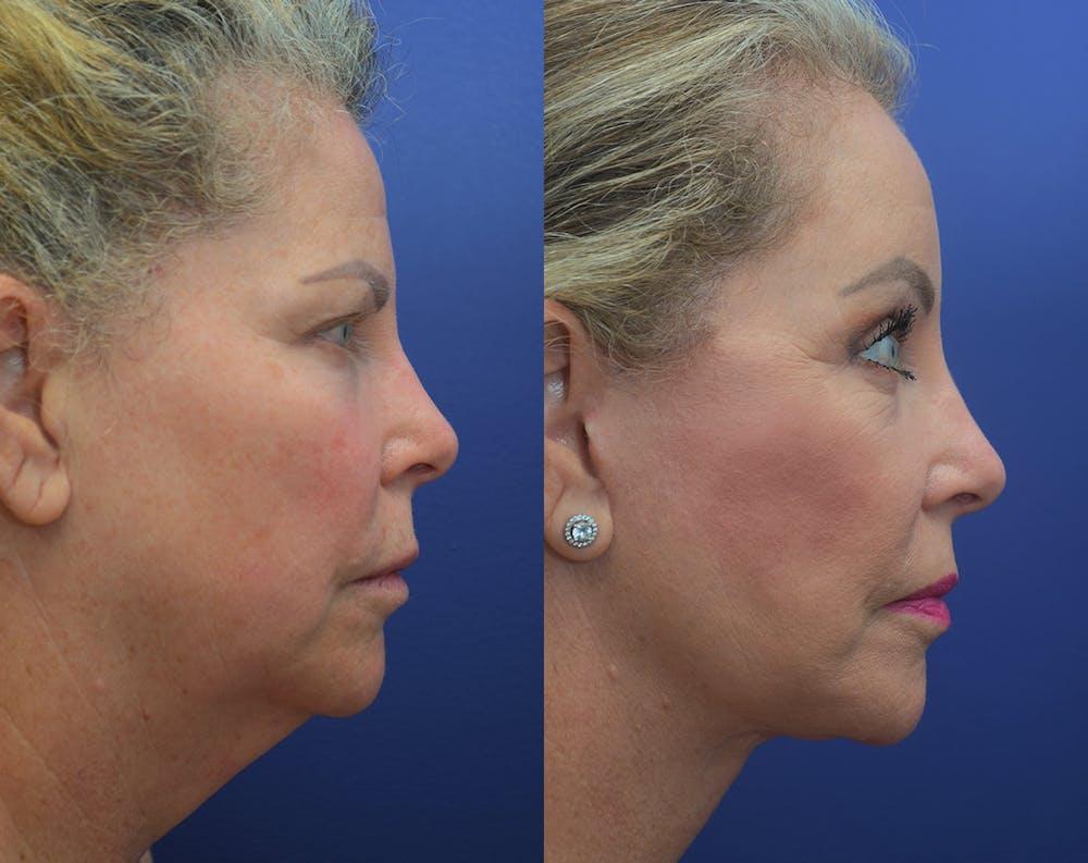 Facelift Gallery - Patient 50993077 - Image 4