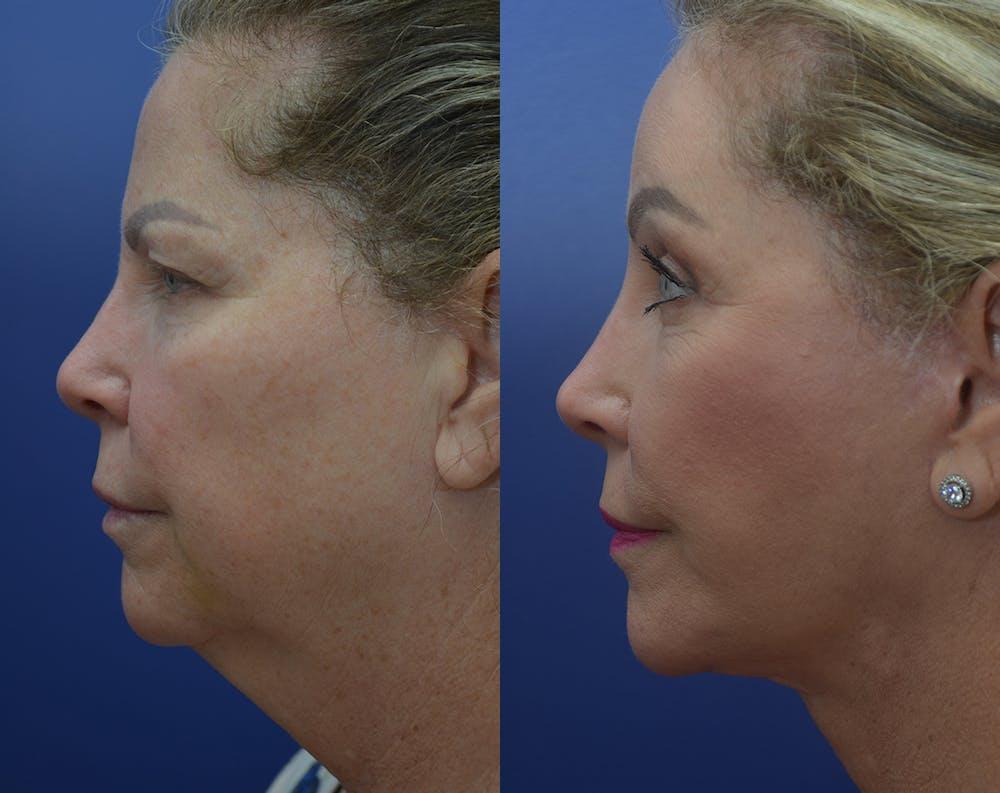 Facelift Gallery - Patient 50993077 - Image 5