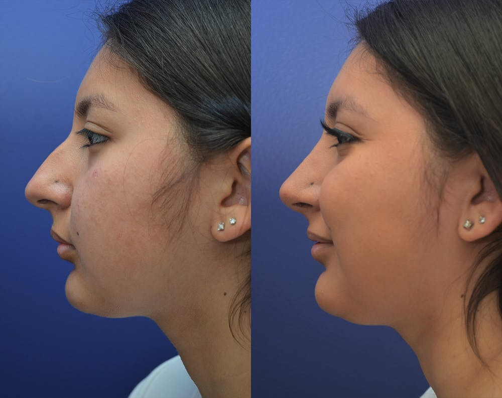 Rhinoplasty (Nose Reshaping) Gallery - Patient 50993171 - Image 1