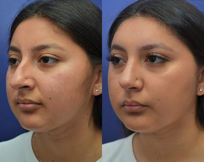 Rhinoplasty (Nose Reshaping) Gallery - Patient 50993171 - Image 2