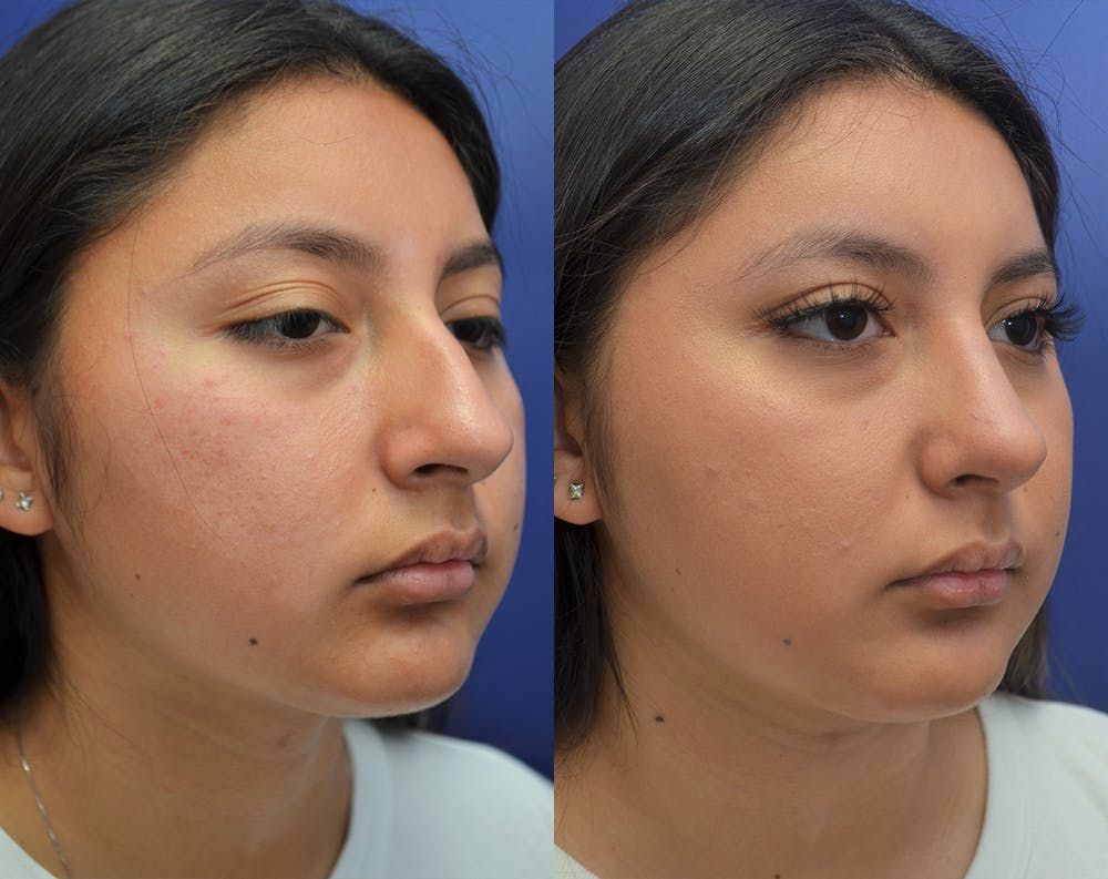 Rhinoplasty (Nose Reshaping) Gallery - Patient 50993171 - Image 3