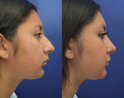 Rhinoplasty (Nose Reshaping) Gallery - Patient 50993171 - Image 4