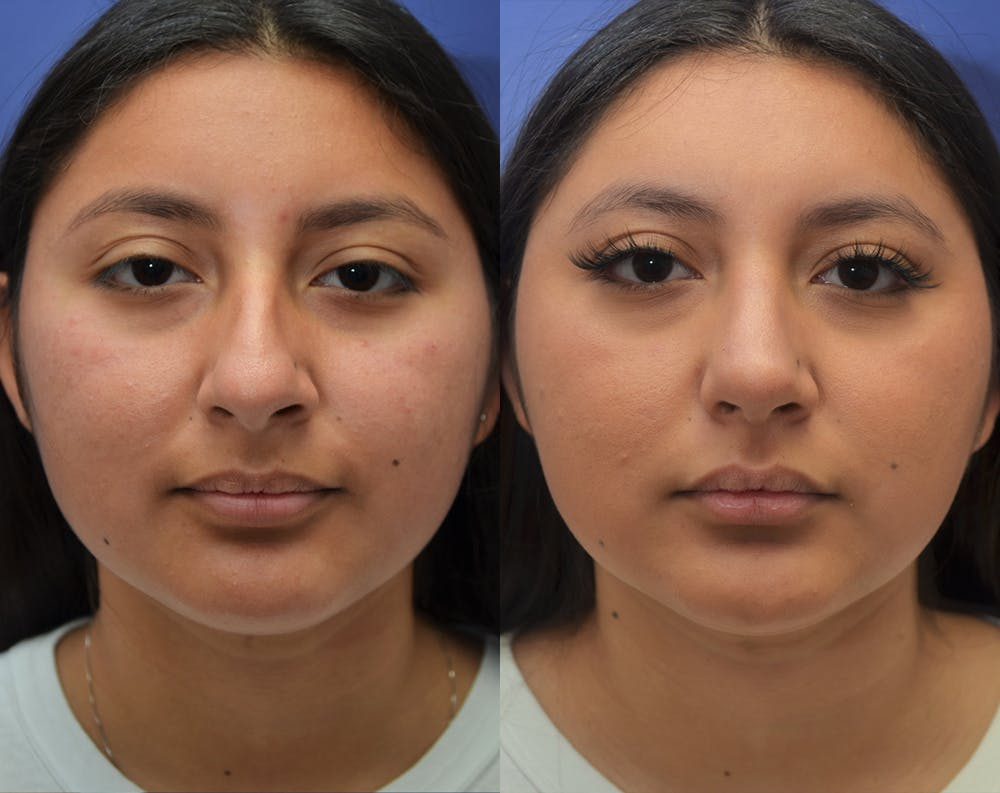 Rhinoplasty (Nose Reshaping) Gallery - Patient 50993171 - Image 5