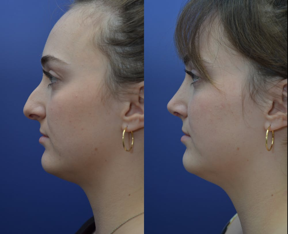 Rhinoplasty (Nose Reshaping) Gallery - Patient 53271088 - Image 1