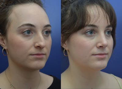 Rhinoplasty (Nose Reshaping) Gallery - Patient 53271088 - Image 2