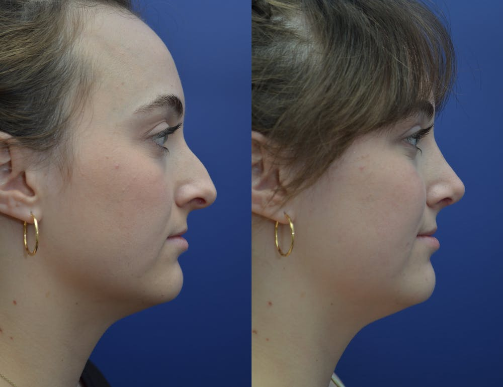 Rhinoplasty (Nose Reshaping) Gallery - Patient 53271088 - Image 3