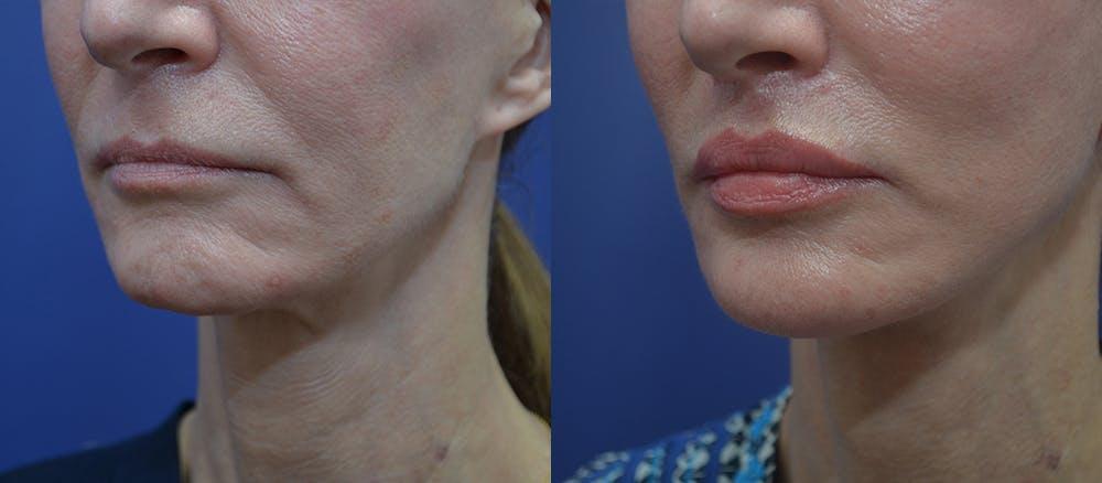 Lip Augmentation Gallery - Patient 23053122 - Image 2