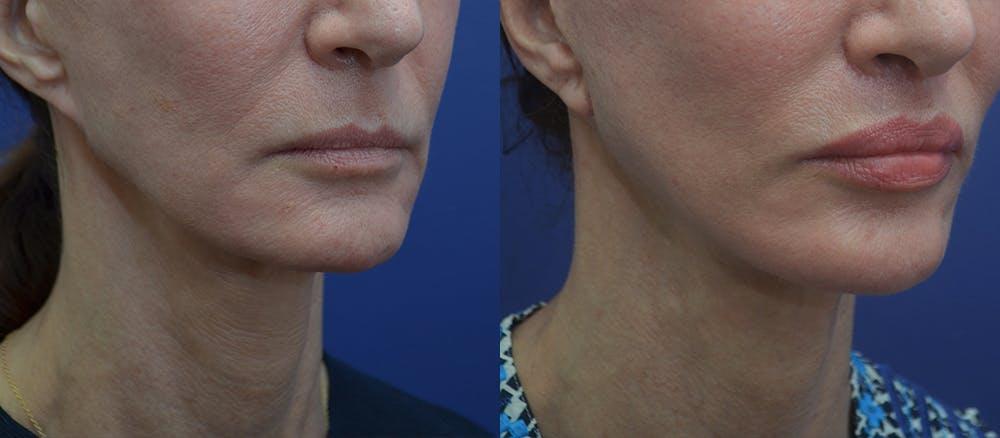 Lip Augmentation Gallery - Patient 23053122 - Image 3