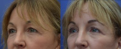 Eyelid Surgery Gallery - Patient 53271995 - Image 1