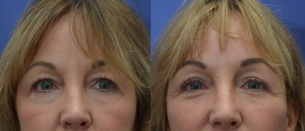 Eyelid Surgery Gallery - Patient 53271995 - Image 2