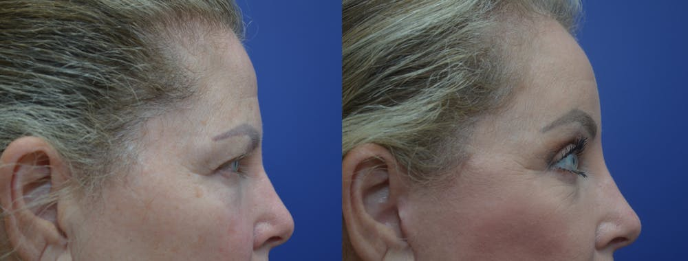 Brow Lift (Forehead Lift) Gallery - Patient 53277124 - Image 5