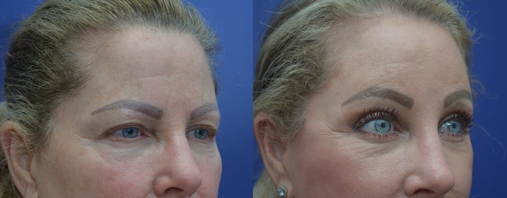 Brow Lift (Forehead Lift) Gallery - Patient 53277124 - Image 4