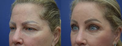 Brow Lift (Forehead Lift) Gallery - Patient 53277124 - Image 2