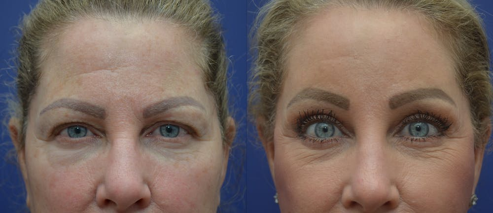 Brow Lift (Forehead Lift) Gallery - Patient 53277124 - Image 1
