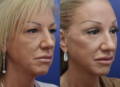Facelift Gallery - Patient 4588112 - Image 2