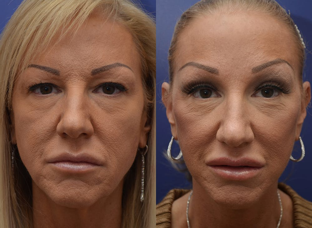 Facelift Gallery - Patient 4588112 - Image 3