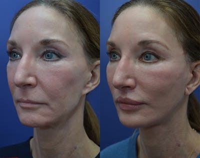 Facelift Gallery - Patient 25732381 - Image 1