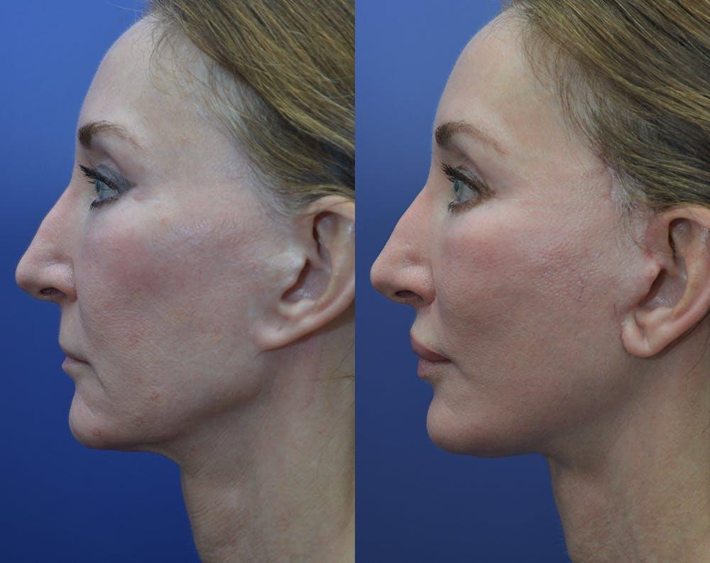 Facelift Gallery - Patient 25732381 - Image 2