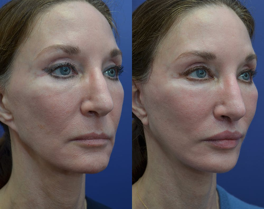 Facelift Gallery - Patient 25732381 - Image 3