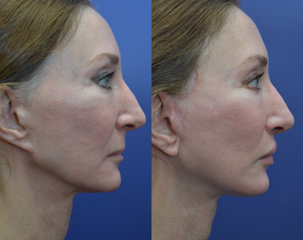 Facelift Gallery - Patient 25732381 - Image 4