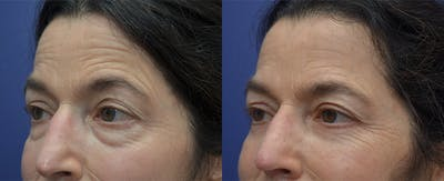 Eyelid Surgery Gallery - Patient 57580814 - Image 1