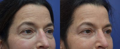 Eyelid Surgery Gallery - Patient 57580814 - Image 2