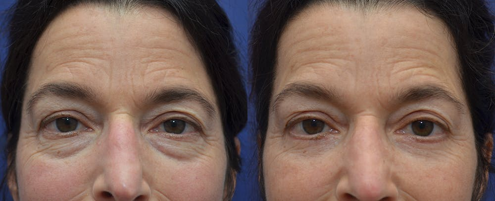 Eyelid Surgery Gallery - Patient 57580814 - Image 3