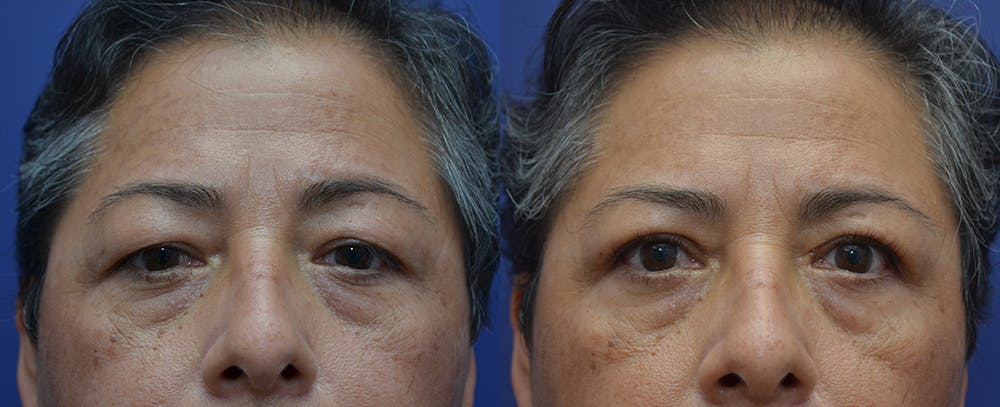 Eyelid Surgery Gallery - Patient 57582043 - Image 1