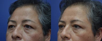 Eyelid Surgery Gallery - Patient 57582043 - Image 2