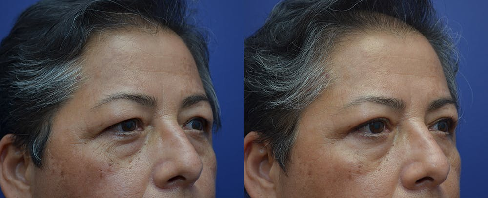 Eyelid Surgery Gallery - Patient 57582043 - Image 3
